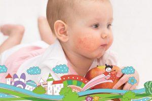 Atopijski dermatitis ili ekcem kod beba i dece
